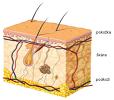 Kožní nemoci